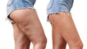 Comparativo de la piel sana y otra enferma de celulitis