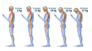Posturas inadecuadas para la columna vertebral