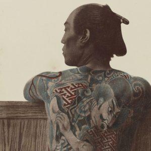 Mesoterapia en tatuajes asiáticos