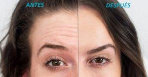 Eliminación de arrugas frontales