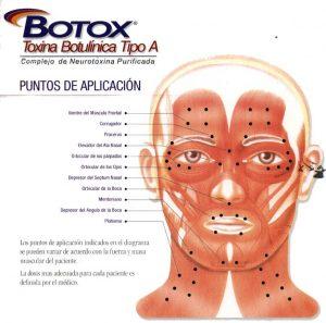 Gráfico de Botox